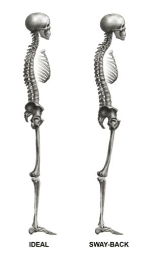 Poor posture - skeleton illustration
